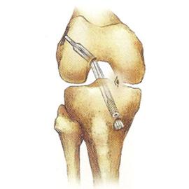 rutura ligament incrucisat anterior