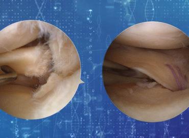 Leziunile de rădăcină a meniscului și tratamentul acestora
