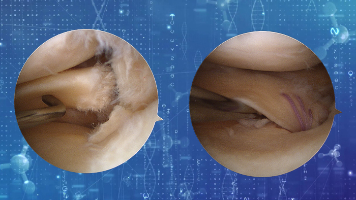 meniscal root repair
