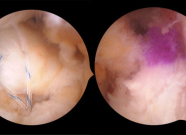 Reinserția rădăcinii de menisc, asociată leziunii de ligament încrucișat anterior.