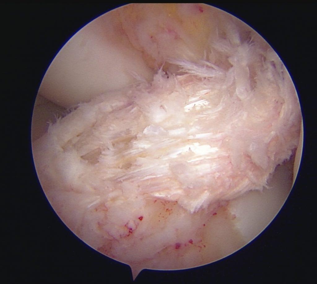 grefa ligament genunchi ruptura de ligament incrucisat Dr Adrian Todor